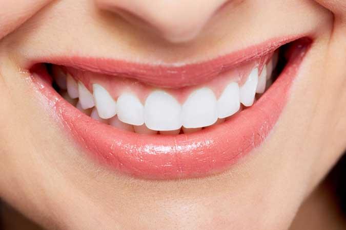 dental makeover cases