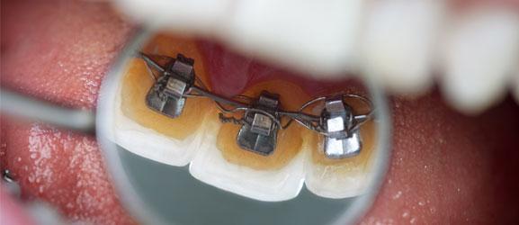 STb Lingual braces