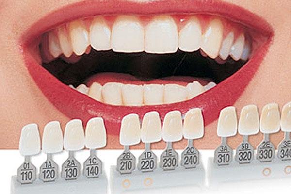 dental veneers fees