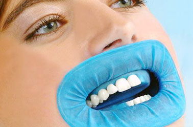 fillings removal