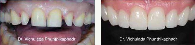 crowns dental cases