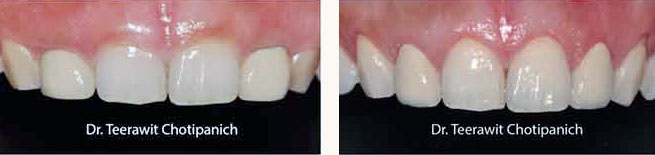 gums treatment dental cases