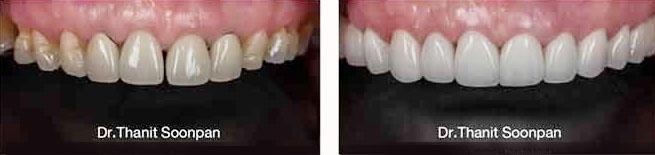 veneer dental cases