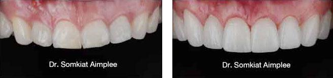 veneers dental case