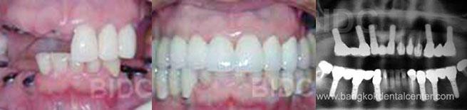 bridge dental cases