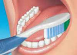 dental clinic teeth cleaning