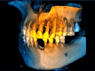 jaw surgery